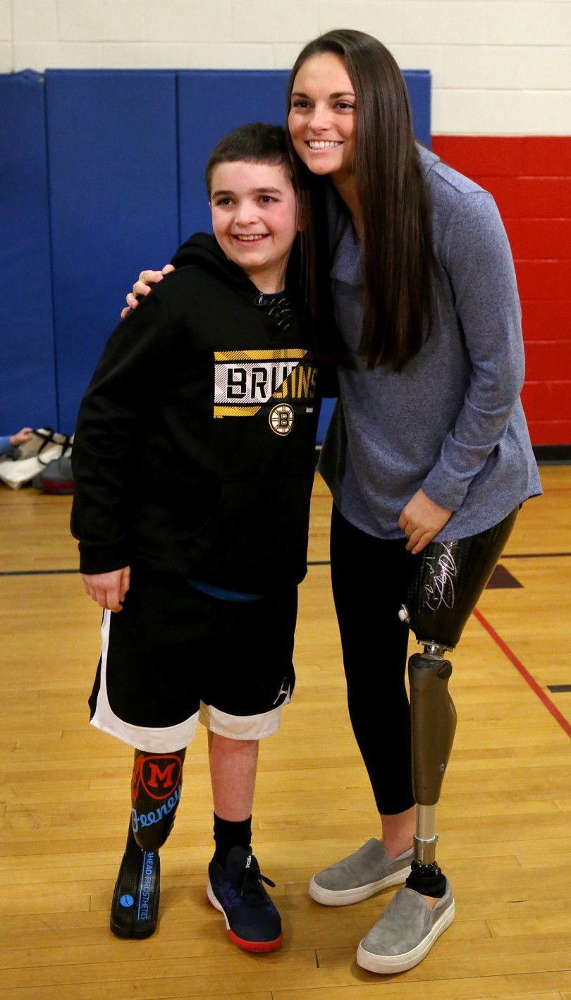 Born To Run Foundation gives running blade to 9-year-old