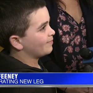'There's no limits': 9-year-old athlete fitted with new prosthetic leg